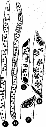 RBSE Solutions for Class 11 Biology Chapter 13 Plant Tissue: Internal Morphology and Anatomy img-20