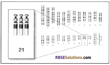RBSE Solutions for Class 12 Biology Chapter 36 Man-Chromosomal Aberrations img 10