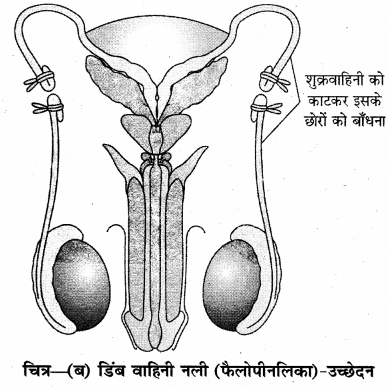 RBSE Solutions for Class 12 Biology Chapter 38 मानव जनसंख्या 4